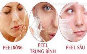 Ba cấp độ khác nhau của peel da.